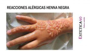 Reacciones alergicas henna negra