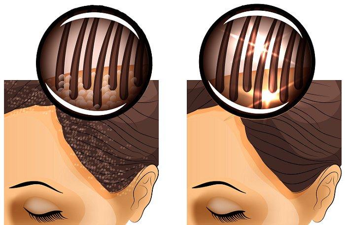 consejos para eliminar la caspa del cuero cabelludo